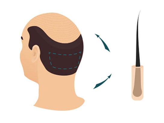 Greffe de Cheveux FUE Méthodes