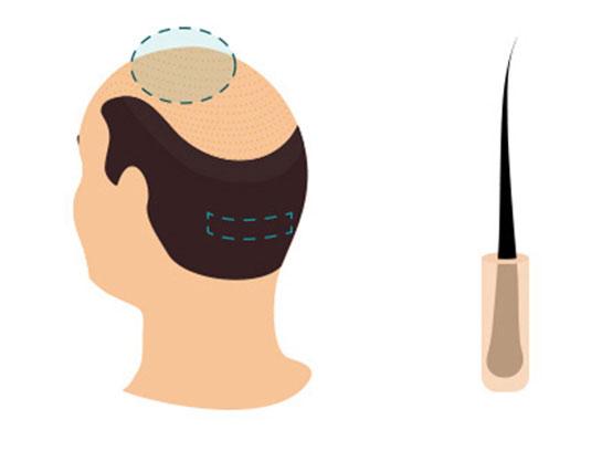 Greffe de Cheveux FUT Turquie