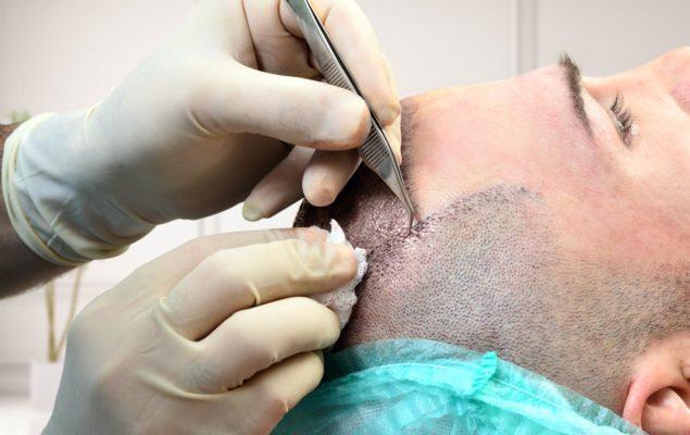 Greffe de Cheveux implantation manuel
