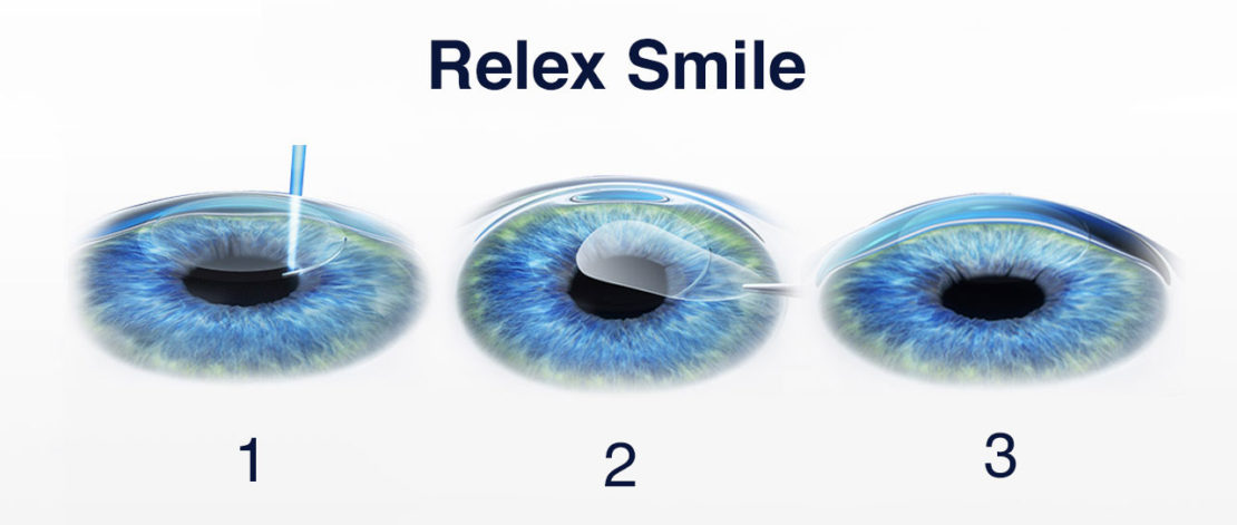 Relex Smile Méthode