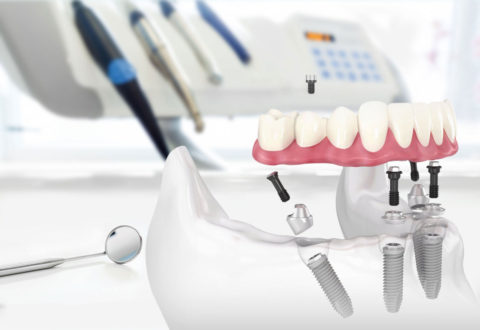 All on 4 implant istanbul