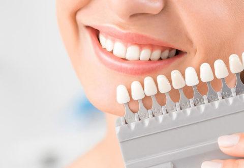 Blanchiment des dents Turquie