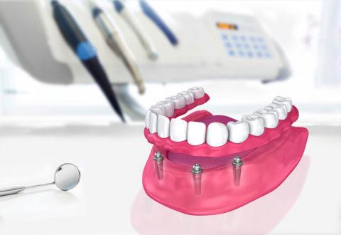 Prothèse dentaire Turquie
